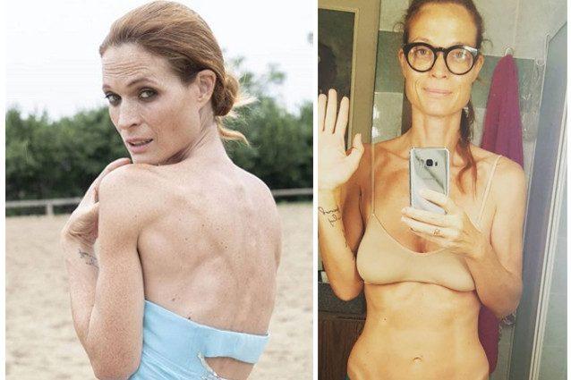"""Jane Alexander: """"Ho la candida intestinale, non sono anoressica"""""""