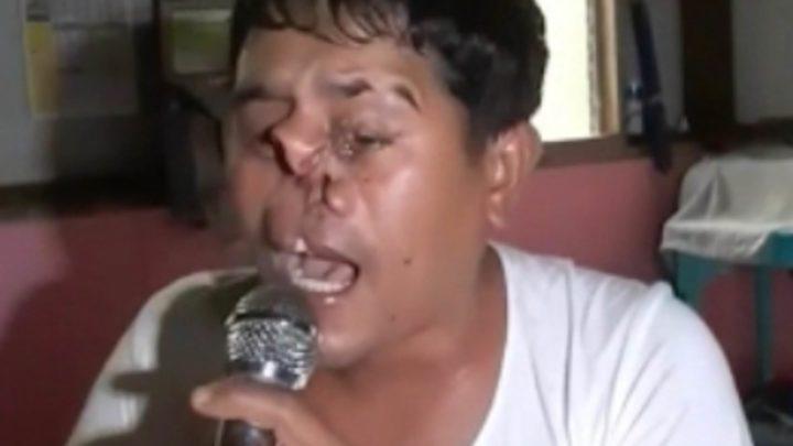 Nonostante le deformità, si esibisce su YouTube e le canta ai bulli: letteralmente – VIDEO