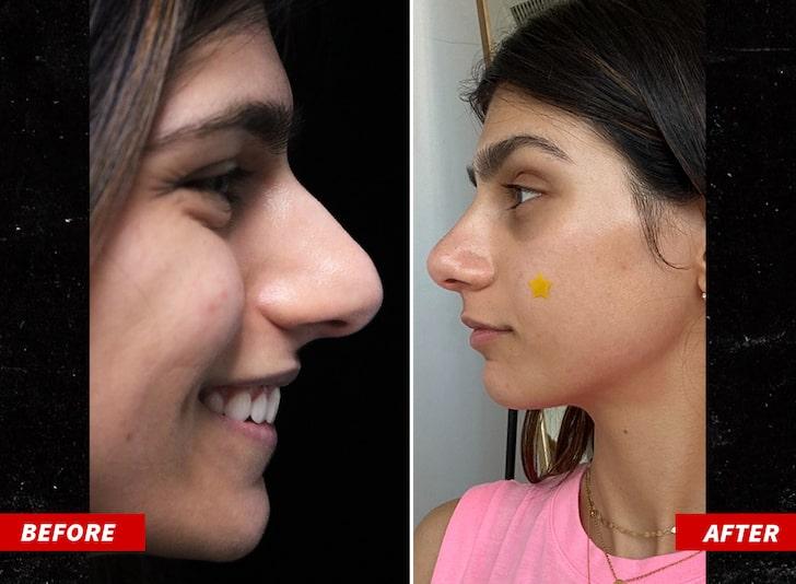 Nuovo naso per Mia Khalifa: le è costato la bellezza di 15.000 dollari