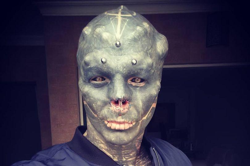 """Modifica il suo corpo per sembrare un alieno. Rimossi naso e orecchie: """"Ora sono felice"""""""