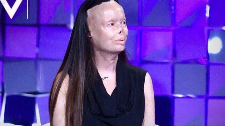 Chi è Valentina Pitzalis, donna sfigurata dal marito con il fuoco? Ecco i dettagli della sua storia